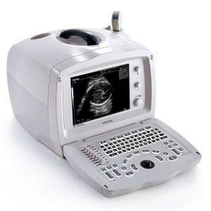 Digital Ultrasound Scanner, Medical Devices Supplier, Medical Devices Supplier in Pakistan, Hospital Furniture Supplier, Polycare Diagnostics