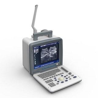 Digital Portable Ultrasound Scanner, Medical Devices Supplier, Medical Devices Supplier in Pakistan, Hospital Furniture Supplier, Polycare Diagnostics